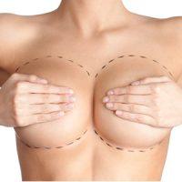 Clinicas aumento de pecho
