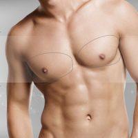 Implante pecho hombre