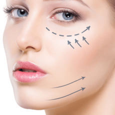 Las Bolsas de Bichat, la cirugía estética facial del momento