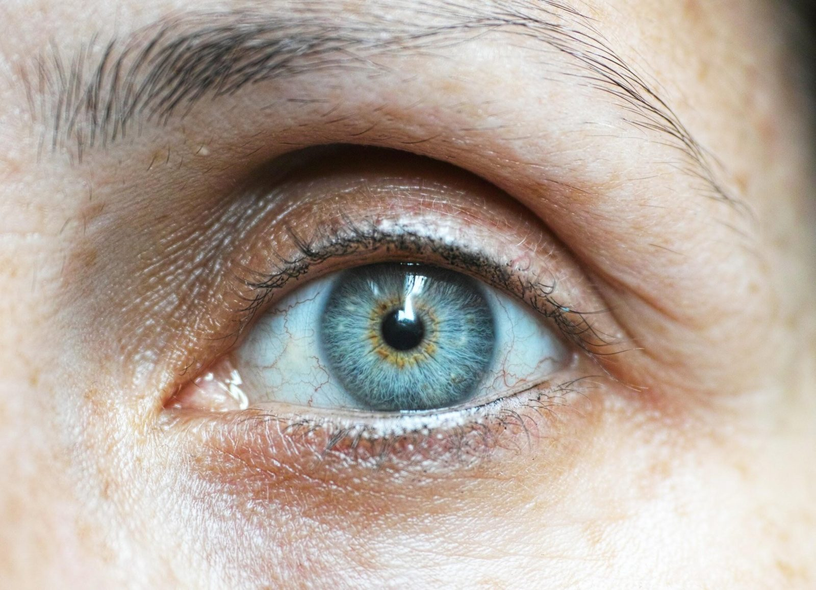 Preguntas comunes sobre la blefaroplastia.