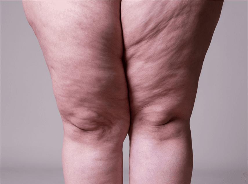 Consecuencias de padecer Lipedema, la falsa obesidad